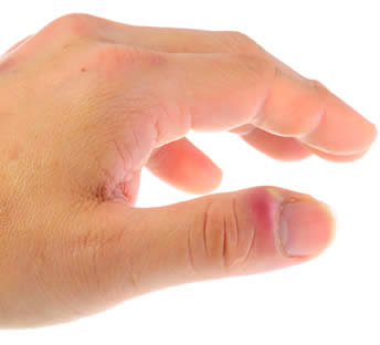 infection ongle incarne orteil